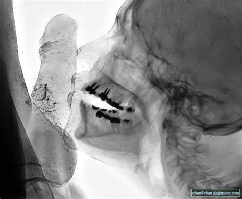 free xray oral sex pictures jpg 600x496