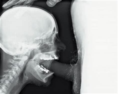Oral sex made in xray lab rpics reddit jpg 320x256