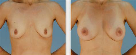 Breast augmentation in virginia beach jpg 545x220